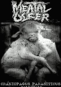 Meatal Ulcer – Craniopagus Parasiticus Tape